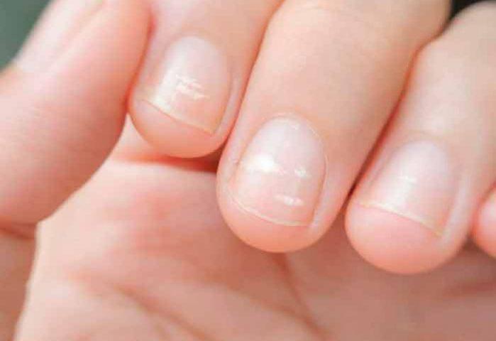 Tienes uñas amarillas o débiles? Esto dicen sobre tu salud – Notinor ...